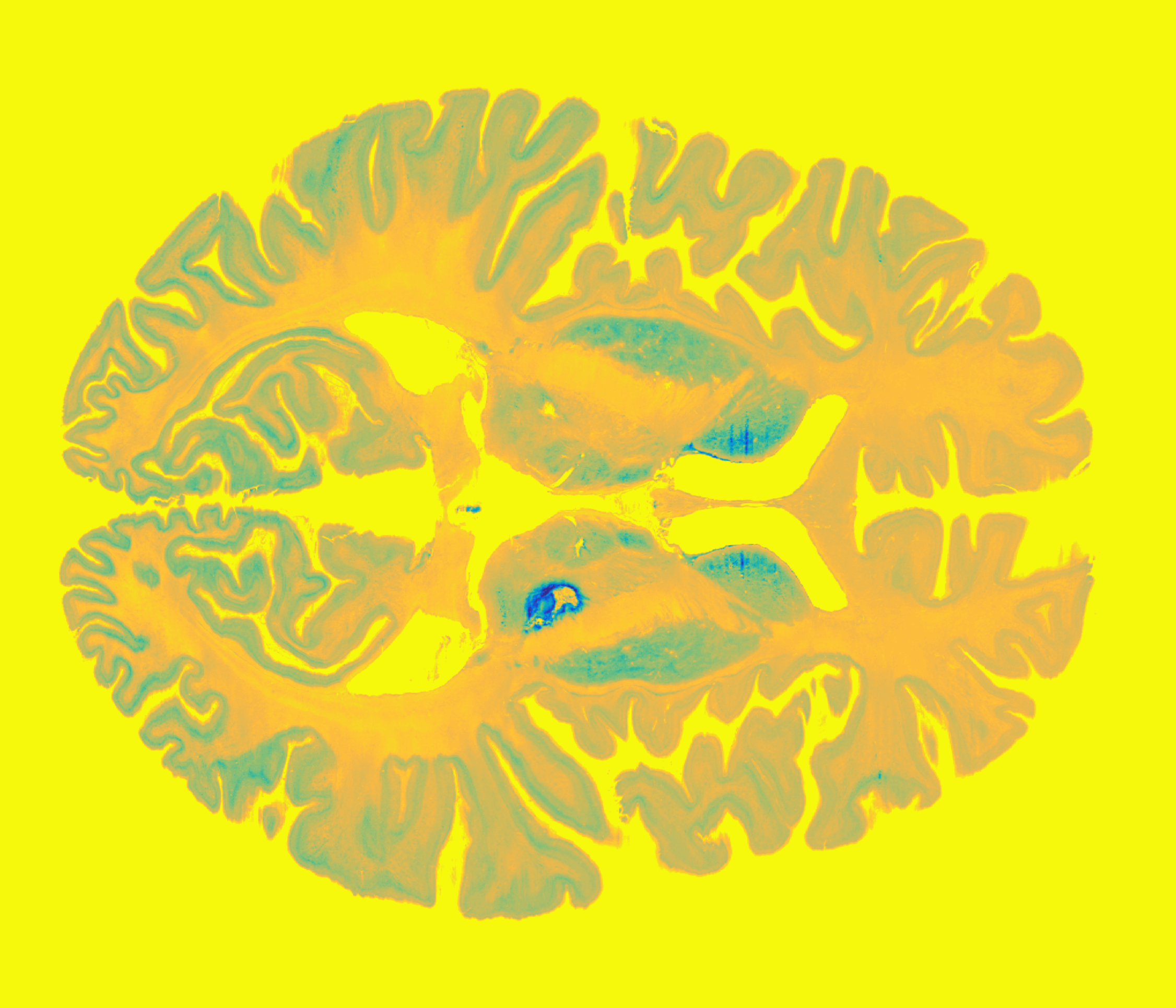 Subcortical Atlases (MNI-Space) – Lead-DBS